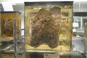 Bild Pathologische Sammlung Heidelberg